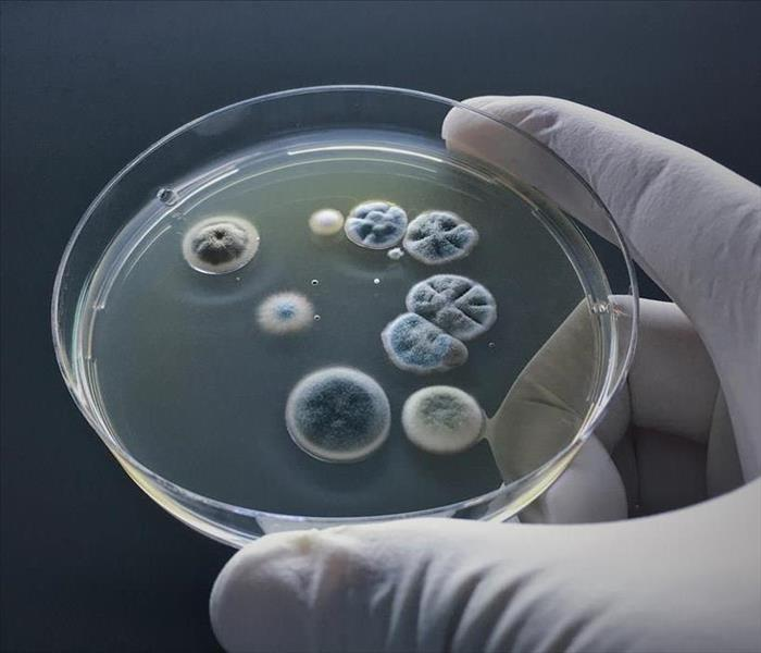 Scientist show molds in agar culture.